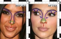 kim-kardashian-nose-job
