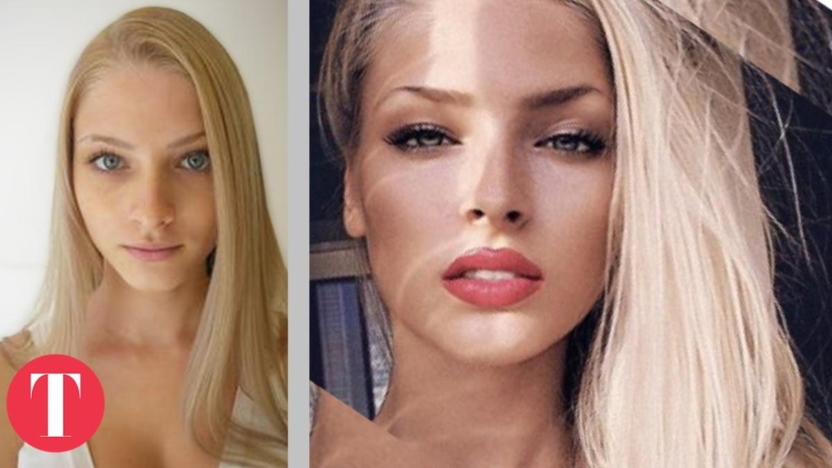 Az Instagram üdvöskéi: plasztika előtt és után